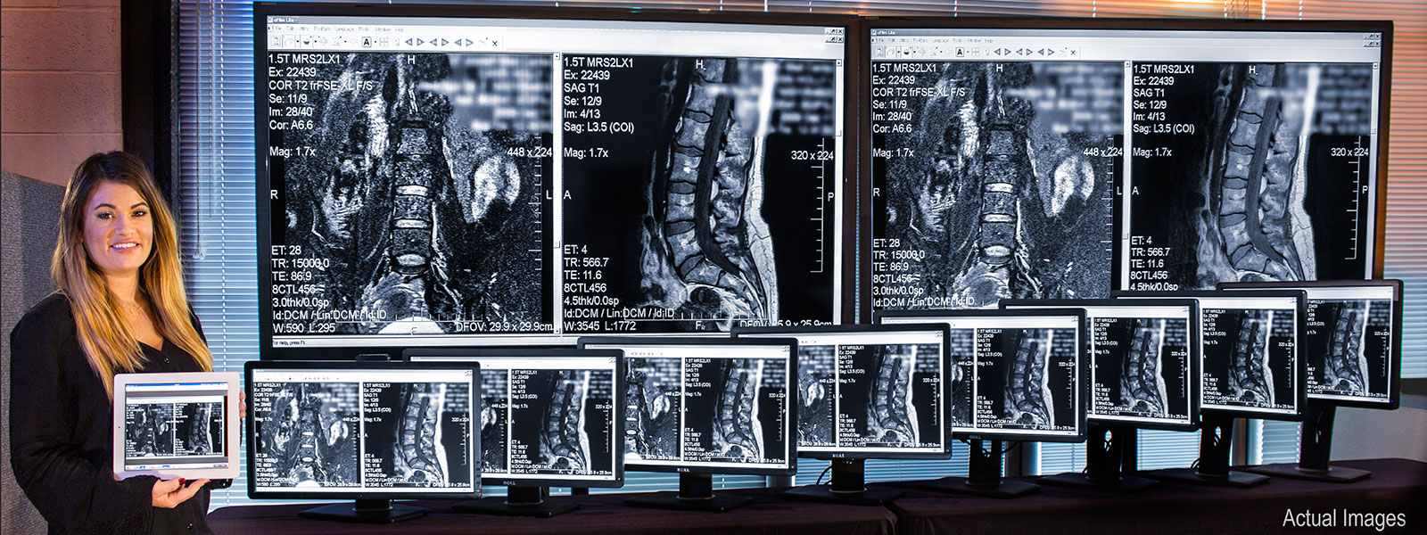 Monitors-HD-MRI